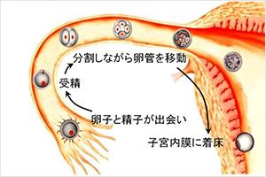 卵管内移植