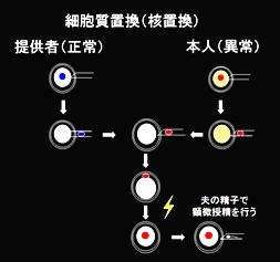 卵細胞質置換