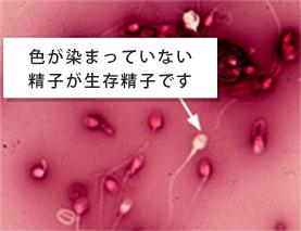 ニグロシン・エオシン染色