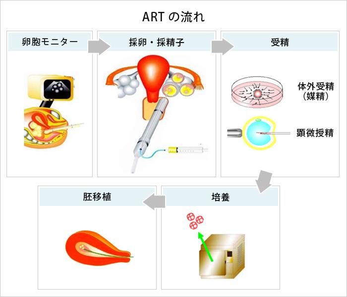 ARTの流れ